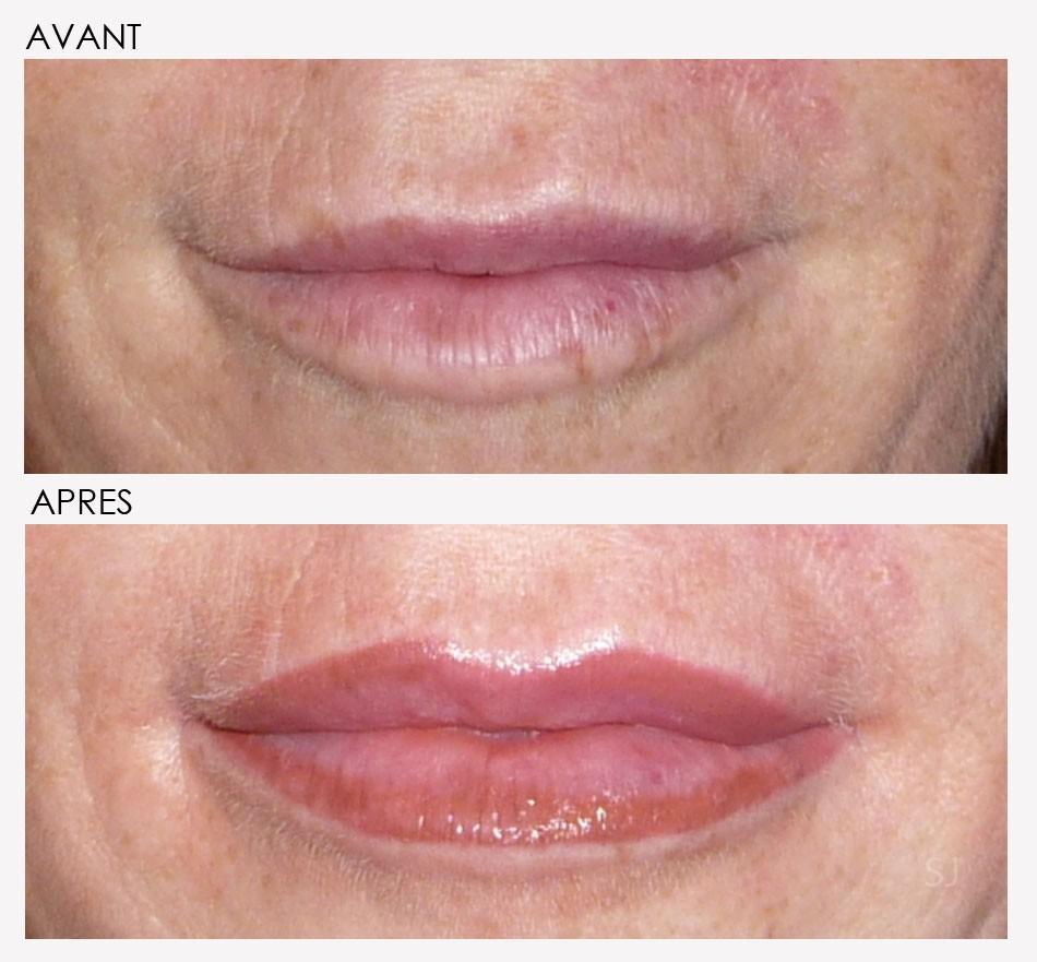 Maquillage permanent bouche avant apres 8